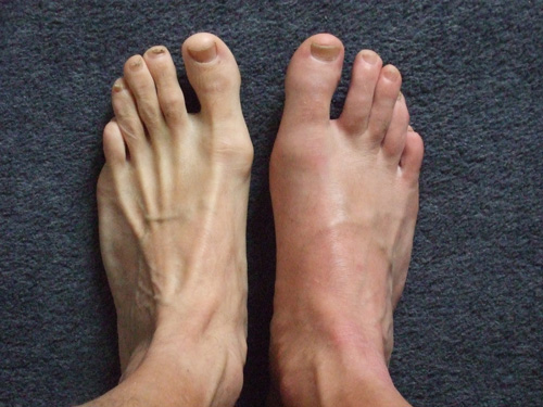 normal uric acid level in india gout natural remedy report gout in ankle area
