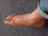 Swollen painful right foot